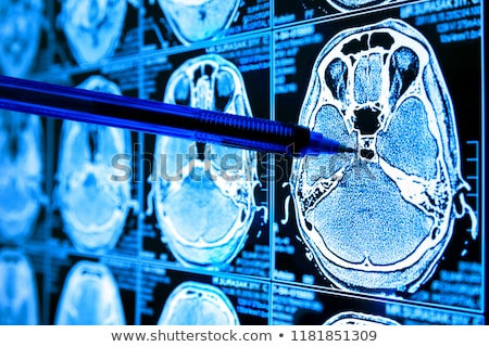 cancer on the display of medical tablet stock photo © tashatuvango