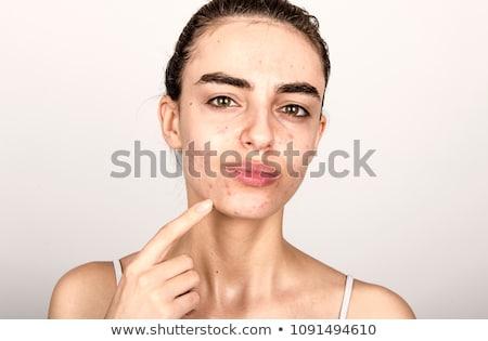 Menino menina acne problema ilustração cara Foto stock © bluering