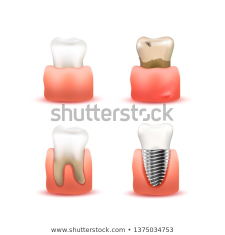 Set of white healthy, sick and rotten, artificial implant tooth in gums isolated on white Stock photo © evgeny89