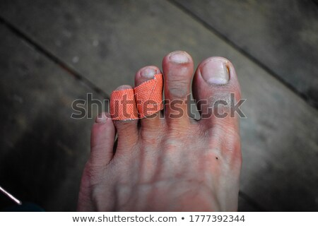 Közelkép tapasz női lábujj sebesült tapadó Stock fotó © CsDeli