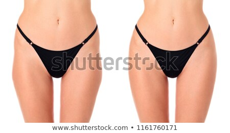 Closeup shot of female thighs before and after treatment, isolat Stock photo © Nobilior