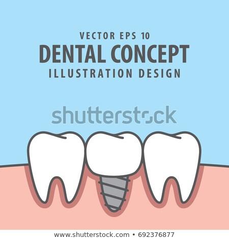 искусственный зубов стоматологическое оборудование синий белый Сток-фото © AndreyPopov