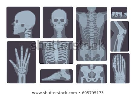 X-ray shot of foot side view, human body, bones, radiography, vector illustration. Stock photo © MarySan