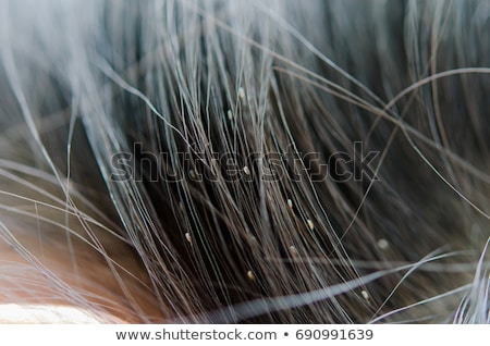 Lice In Hair Stock photo © Lightsource