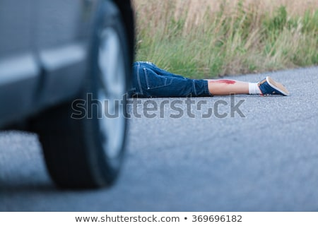 A boy injured leg Stock photo © bluering
