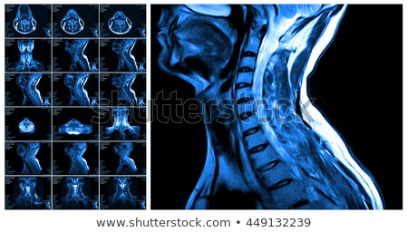 magnetic resonance imaging of the cervical spine stock photo © m_pavlov