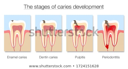 Tooth with caries Stock photo © Tefi