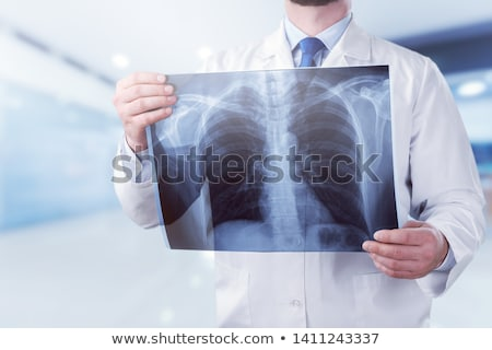 Young male medic examining Xrays of hands stock photo © photography33