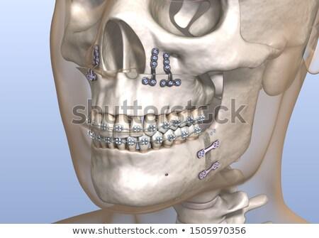 sleep apnea medicine 3d illustration stock photo © tashatuvango