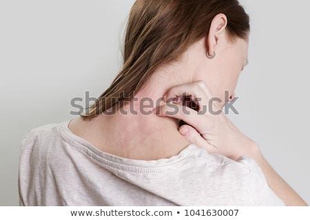 Sivrisinek büyük kadın cilt doku Stok fotoğraf © smithore
