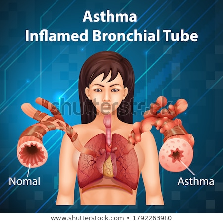 Asthma-inflamed bronchial tube Stock photo © bluering
