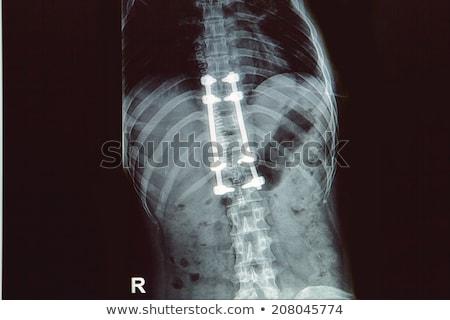 Női hát implantátum mutat számítógép chip Stock fotó © AndreyPopov