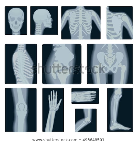 X ray picture of Elbow Stock photo © Klinker