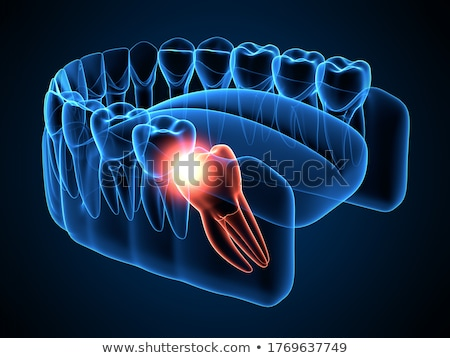Molar Tooth Stock photo © RAStudio