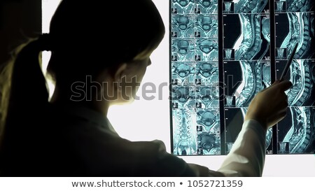 Radiologist doctor vewing an x-ray Stock photo © lovleah
