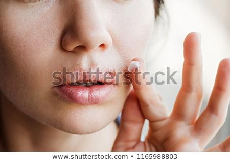 Hideg sebes rajz száj ajkak Stock fotó © blamb