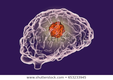 Brain Cancer Stock photo © Lightsource