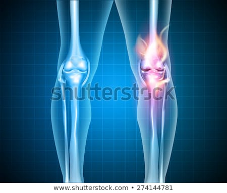 normal knee and unhealthy abstract burning knee joint stock photo © tefi