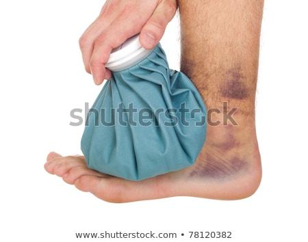 glacê · tornozelo · jovem · masculino · gelo · empacotar - foto stock © luissantos84