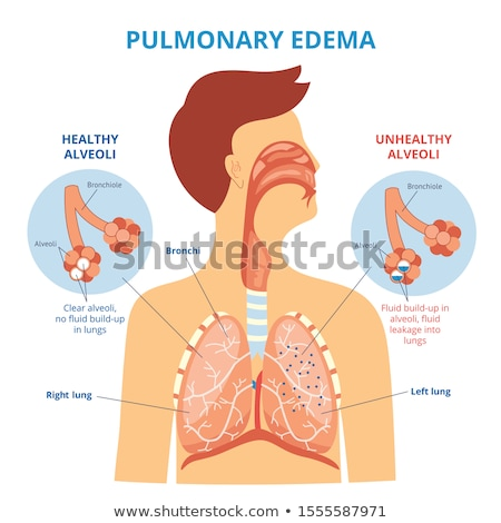 diagram showing healthy and unhealthy lungs stock photo © bluering