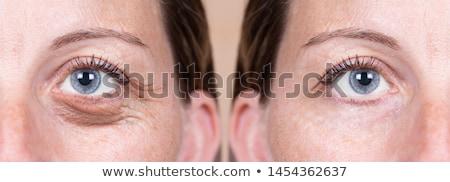 まぶた 手術 眼 1 日 ストックフォト © Hofmeester