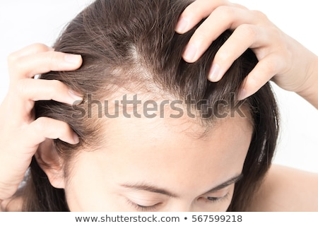 Hair Loss. Medical Concept. Stock photo © tashatuvango