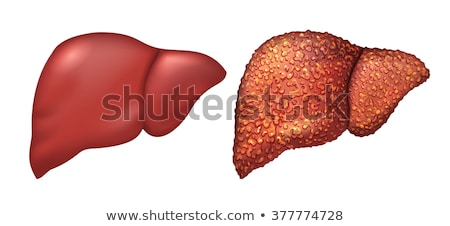 liver of healthy person liver patients with hepatitis liver is sick person cirrhosis of liver re stock photo © orensila