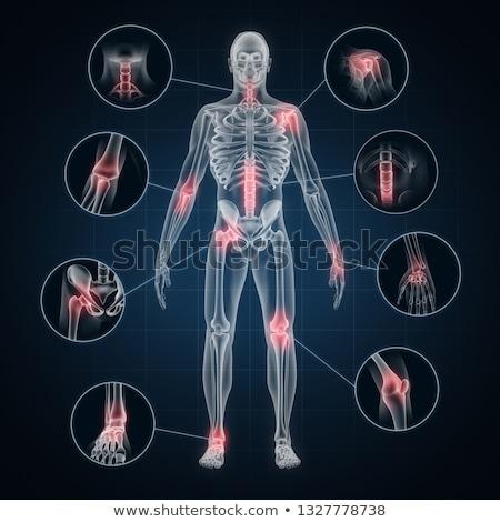 Ortak ağrı diyagram insan vücut Stok fotoğraf © Lightsource