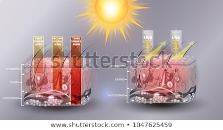 Skin anatomy, skin burn classification and protected skin  Stock photo © Tefi
