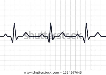 elektrocardiogram · hart · analyse · grafiek · papier - stockfoto © tetkoren