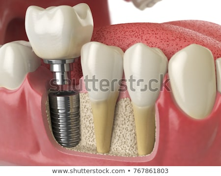 healthy tooth toorh with caries and dental implant stock photo © tefi