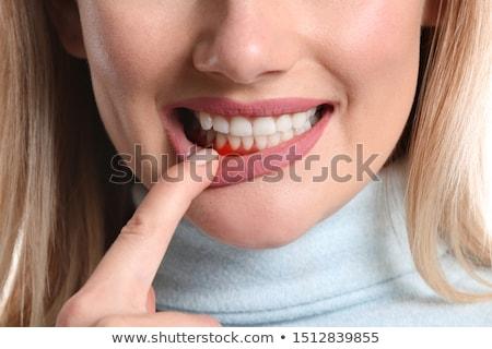 Sakız hastalık yoksul oral diş temizlik Stok fotoğraf © Lightsource