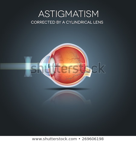Astigmatism corrected by a cylindrical lens. Stock photo © Tefi