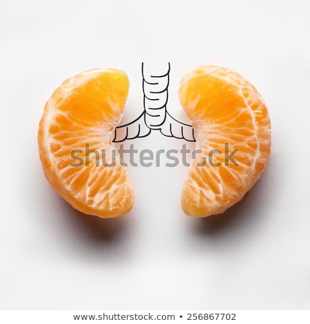 Diagnosis - Pneumonia. Medical Concept. Stock photo © tashatuvango
