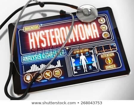 Hysteromyoma on the Display of Medical Tablet. Stock photo © tashatuvango