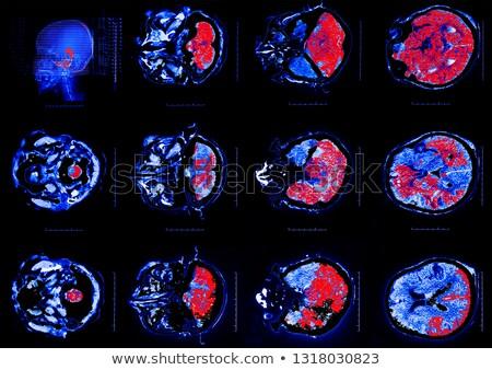 人間の脳 治療 抽象的な 青 技術 脳損傷 ストックフォト © Tefi
