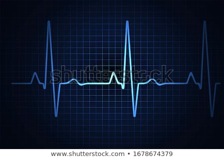 Normal heart cardiogram Stock photo © Tefi