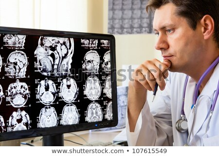 Doctor Looking at Scan Xray Analysis Diagnostics Stock photo © robuart