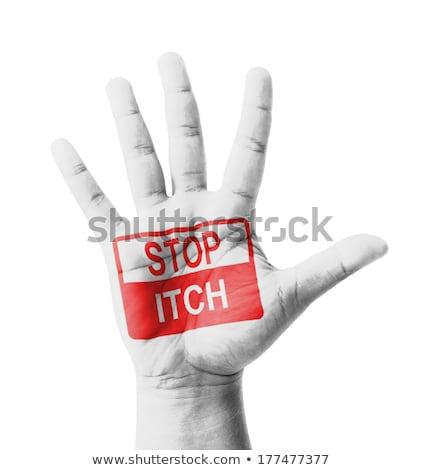 Stop ITCH Concept on Open Hand. Stock photo © tashatuvango