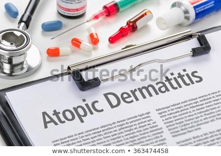 the diagnosis atopic dermatitis written on a clipboard stock photo © zerbor