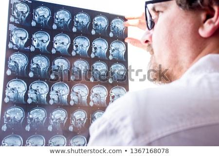 brain aneurysm stock photo © lightsource