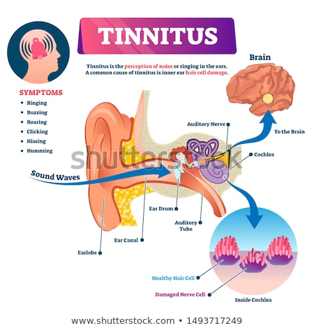 Tinnitus Stock photo © Lightsource