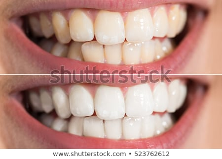 Person Teeth Before And After Whitening Stock photo © AndreyPopov