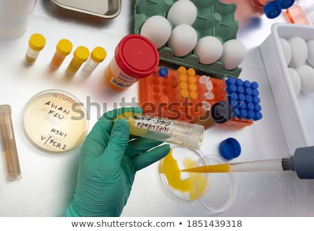 h7n9 diagnosis medical concept stock photo © tashatuvango