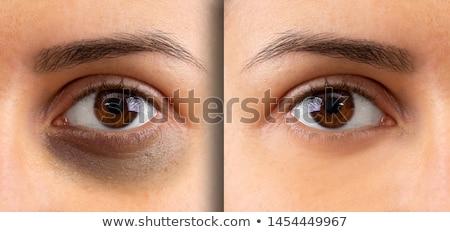 Dark eye circles Stock photo © szefei