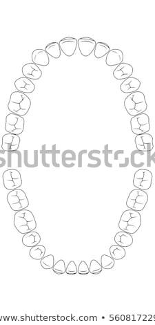 Diş diyagram örnek çalışma dişçi bakım Stok fotoğraf © adrenalina