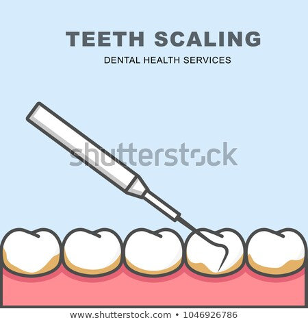 Tooth scaling icon - row of tooth, cleaning with periodontal pro Stock photo © gomixer