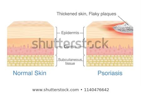 Emberi anatómia fogkő orvosi haj egészség háttér Stock fotó © bluering