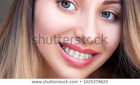 Stock photo: Closing of gap with dental braces