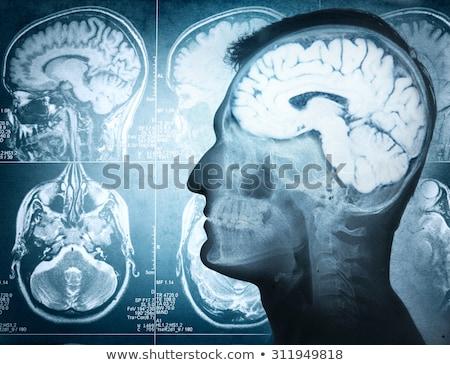 Magnes głowie atrakcja psychologia magnetyczny osobowość Zdjęcia stock © Lightsource